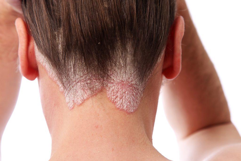 Etwa jeder fünfte Psoriatiker leidet unter der rheumatischen Form der Schuppenflechte. (Bild: Farina3000/fotolia.com)