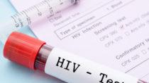 Viel zu wenig mutmaßlich Infizierte unterziehen sich einem HIV-Test (gamjai/fotolia.com)