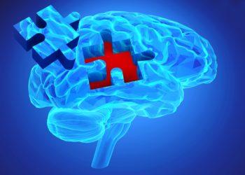 Schon Jahre vor dem Auftreten erster Symptome zeigt sich bei Alzheimer eine veränderte Immunreaktion im Gehirn, die anhand bestimmter Proteine im Nervenwasser festgestellt werden kann. (Bild: goa novi/fotolia.com)
