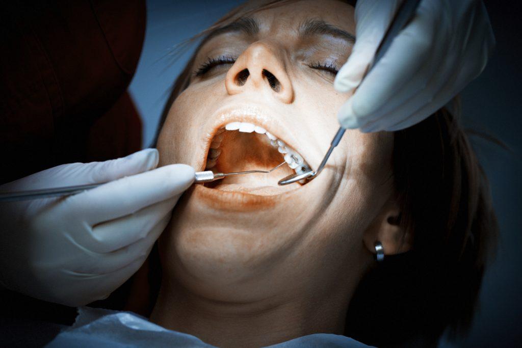 Die Europäische Union will Zahnfüllungen mit Amalgam wegen des giftigen Quecksilbers deutlich zurückdrängen. Künftig sollen Kinder sowie schwangere und stillende Frauen Amalgam nur noch in Ausnahmefällen bekommen. (Bild: sivivolk/fotolia.com)