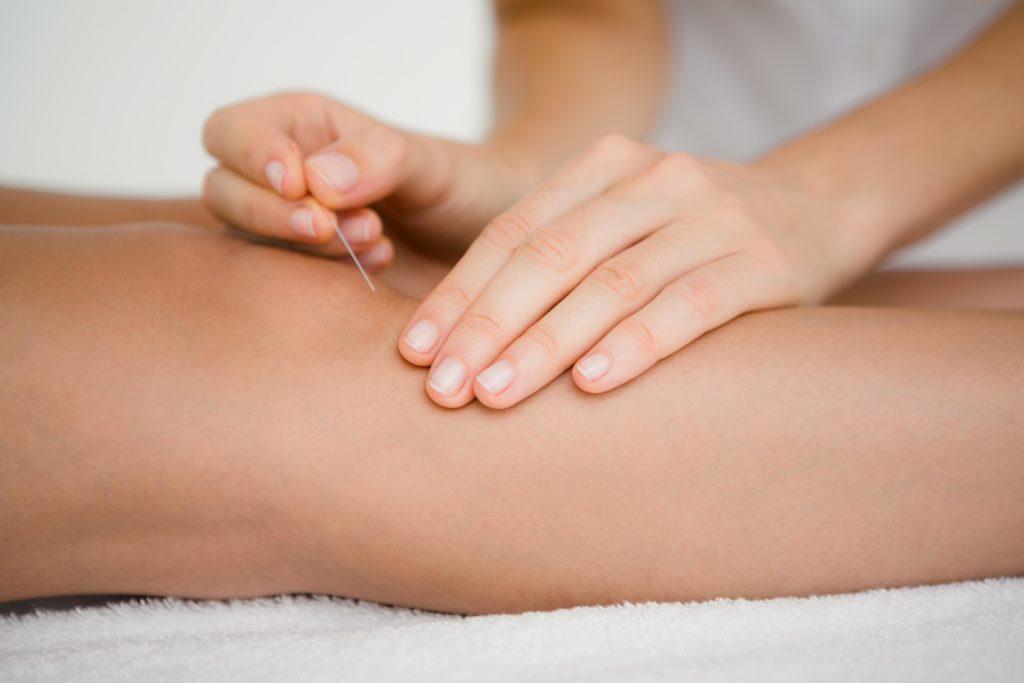 In der Naturheilkunde findet oftmals die Akupunktur Anwendung bei Flüssigkeitsansammlungen im Knie. (Bild: WavebreakmediaMicro/fotolia.com)