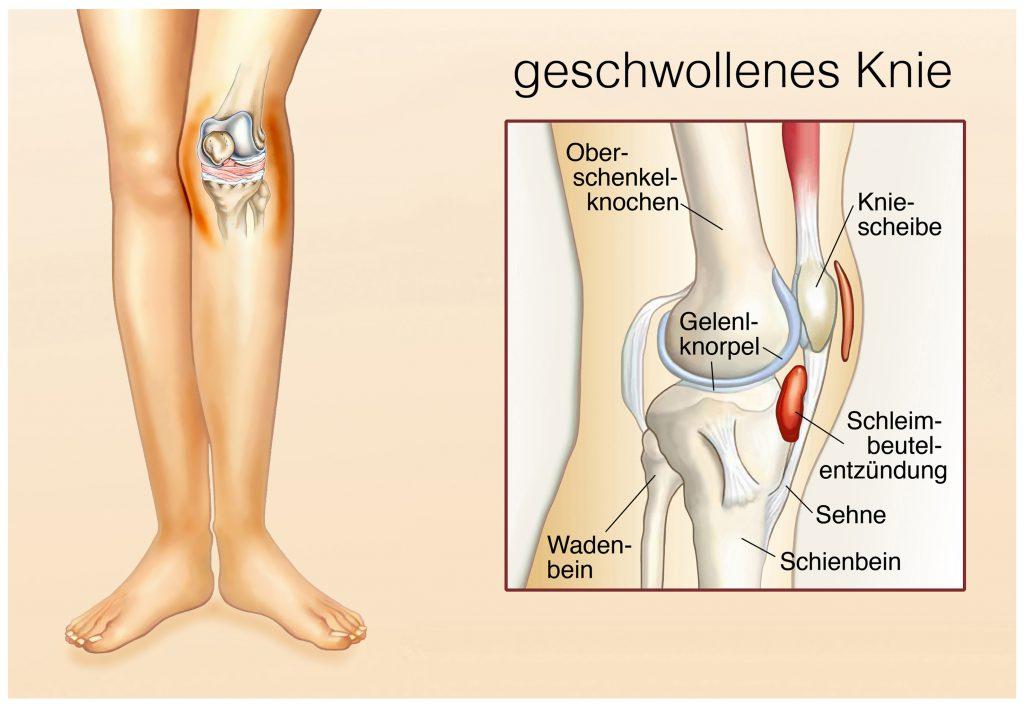 Ursache der Flüssigeitsansammlung sind oft Entzündungen und Verschleißerscheinungen, die die Strukturen im Knie schädigen. (Bild: Henrie/fotolia.com)