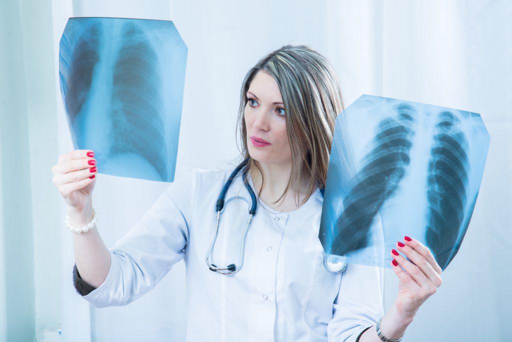 Jährlich wird bei fast zwei Millionen Menschen weltweit Lungenkrebs diagnostiziert. Das Problem Lungenkarzinom wird laut Experten aber noch immer unterschätzt. (Bild: liukovmaksym/fotolia.com)