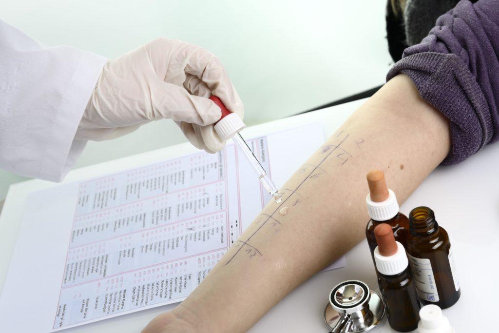 Im Rahmen der Diagnose gilt es vor allem die Ursache der Entzündung zu bestimmen. So kann bei Verdacht auf Heuschnupfen beispielsweise ein Allergie-Test durchgeführt werden. Anschließend ist die Therapie an den festgestellten Ursachen auszurichten. (Bild: Gerhard Seybert/fotolia.com)