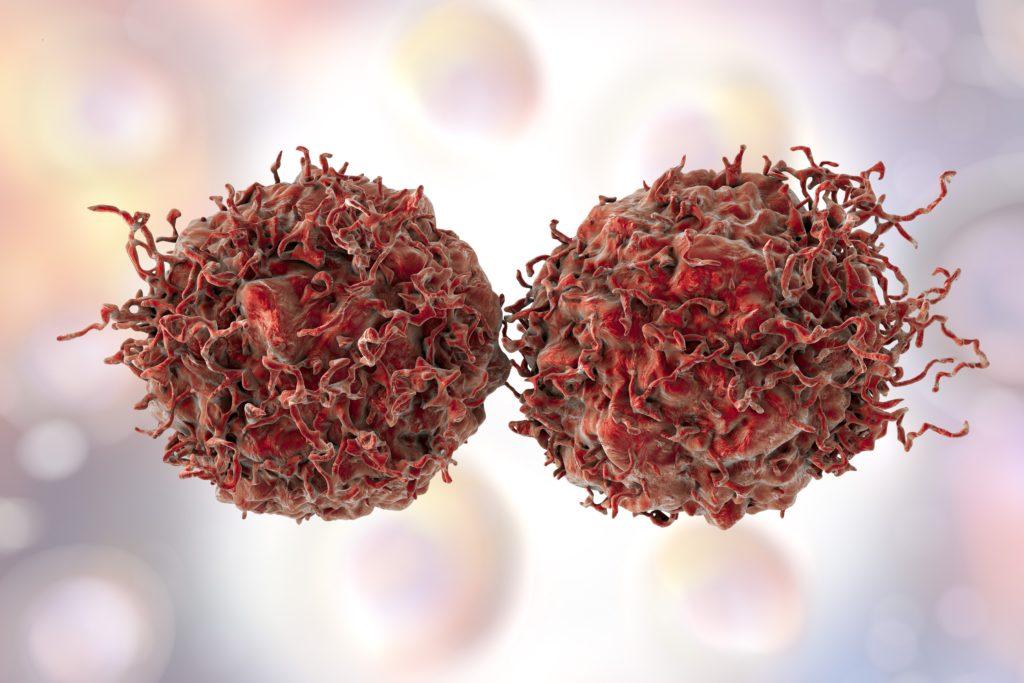 Prostatakrebs ist die häufigste Krebserkrankung bei Männern in Deutschland. Es gibt verschiedene Möglichkeiten zur Behandlung der Krankheit. Eine Studie, die die verschiedenen Therapien vergleichen und beurteilen sollte, wurde nun vorzeitig abgebrochen. (Bild: Kateryna_Kon/fotolia.com)