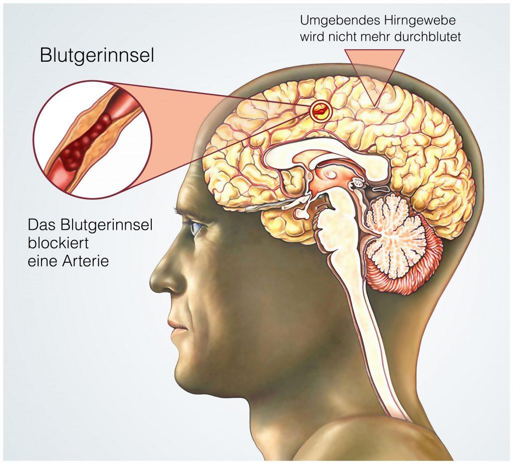 Zu den möglichen Auslösern der Bewusstlosigkeit zählt zum Beispiel ein Schlaganfall, der ein lebensbedrohliches Ereignis darstellt. (Bild: Henrie/fotolia.com)
