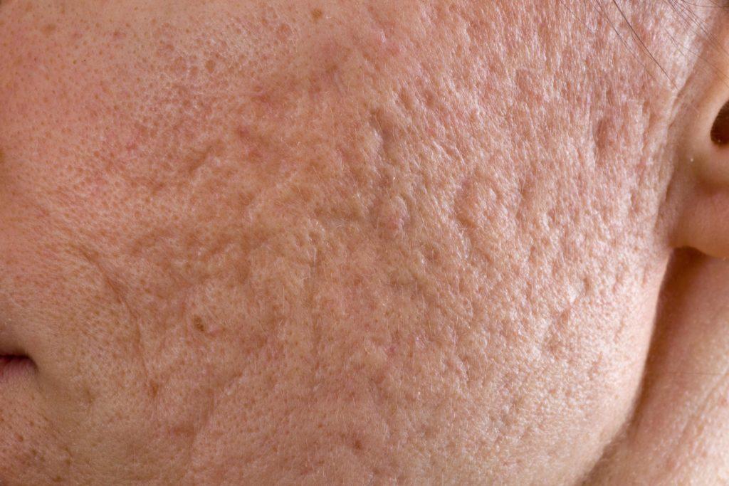 Narben Akne
