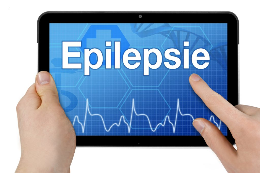 epileptischer anfall ohne epilepsie