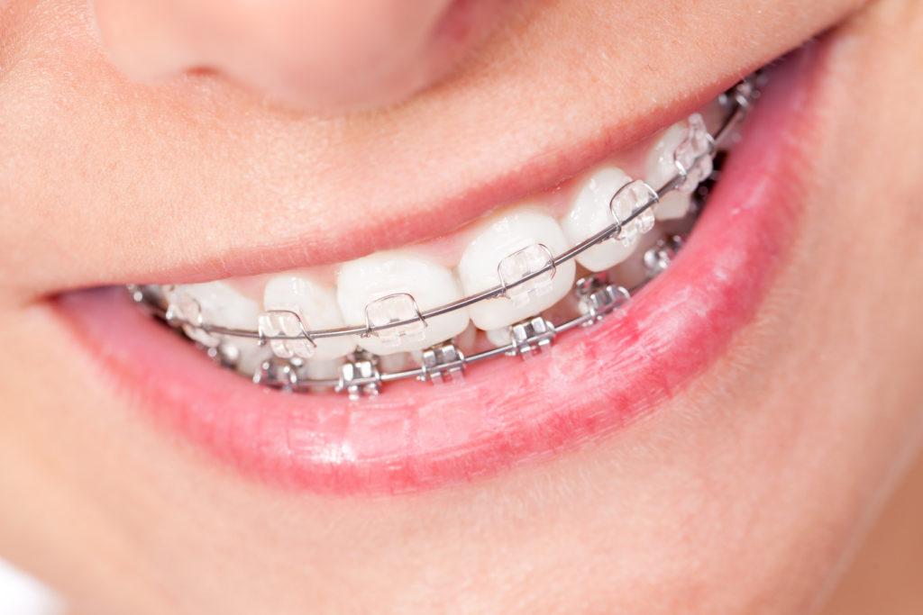 Katy Perry leidet unter sehr schiefen Zähnen