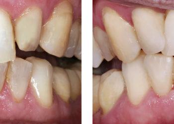 EIne Zahnlücke muss nicht sein. Bild: artepicturas -fotolia