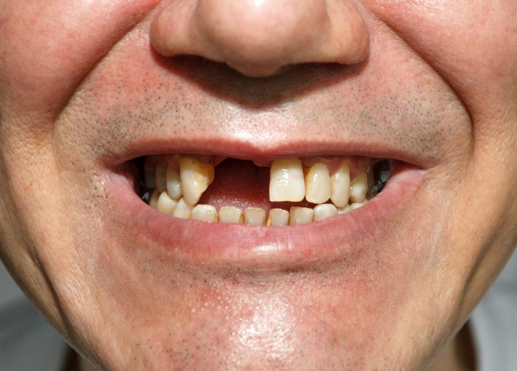 aufgerissene mundwinkel heilen nicht