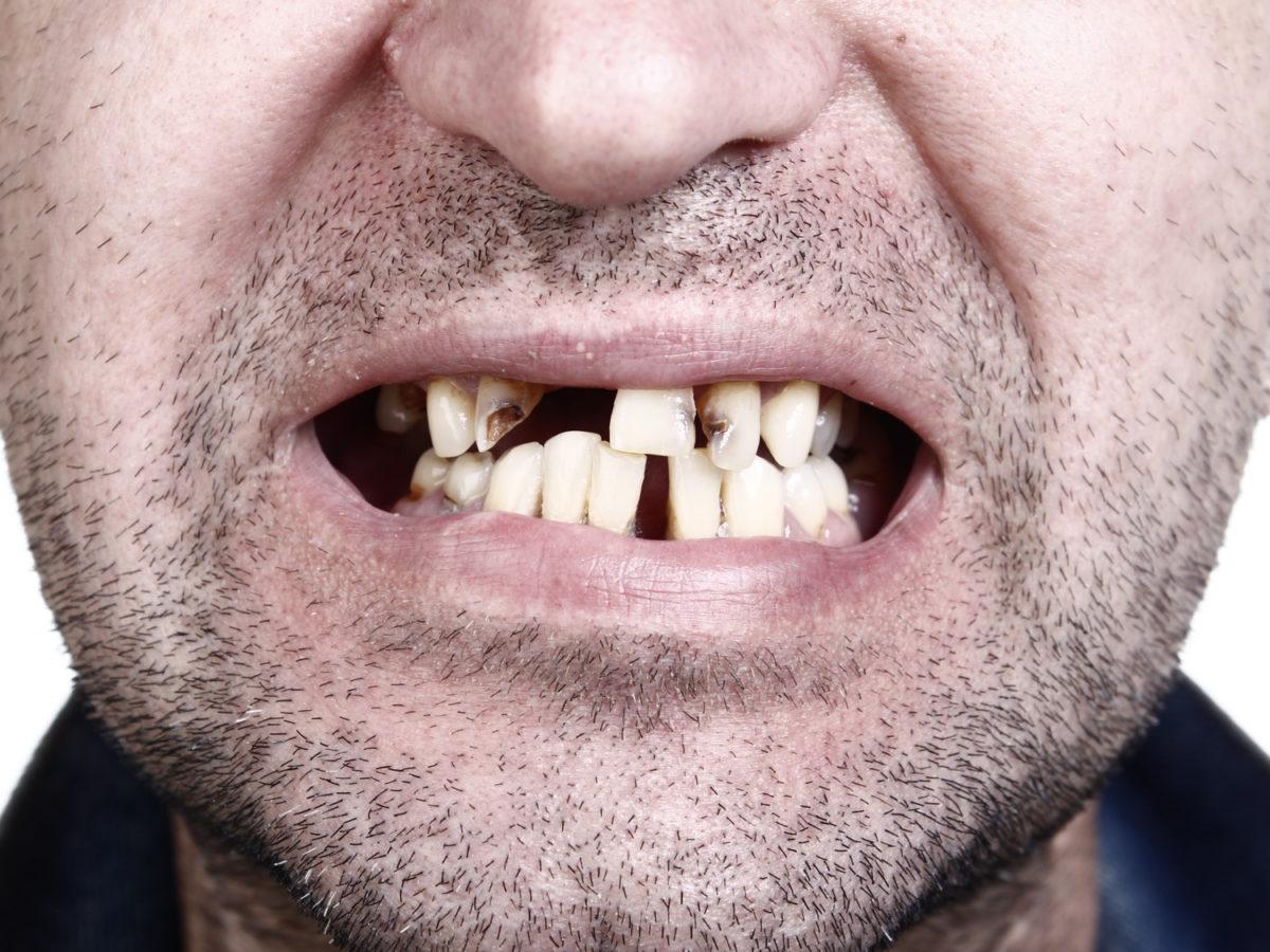 Schönheitsideal: Schiefe Zähne gelten in Japan als extra schick