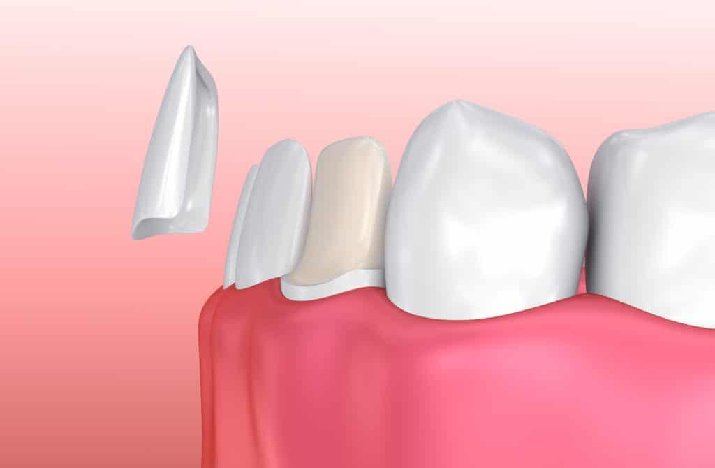 Abgebrochener Zahn Ursachen Und Therapie