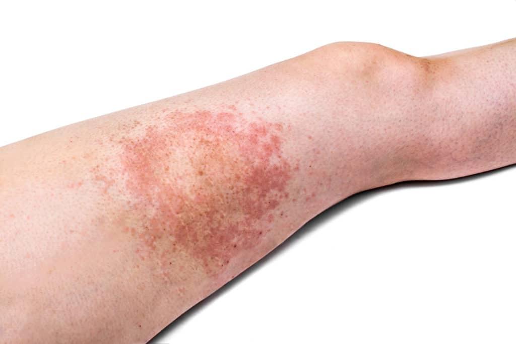 Die Flecke dunkel auf der Haut der Beine