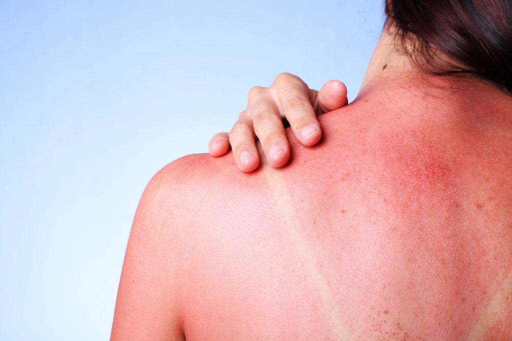 Frau mit Sonnenbrand auf dem Rücken
