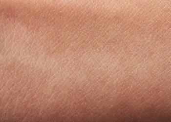 Die Haut ist das größte Organ des Menschen und erfüllt eine Vielzahl lebenswichtiger Aufgaben. (Bild: PixieMe/fotolia.com)