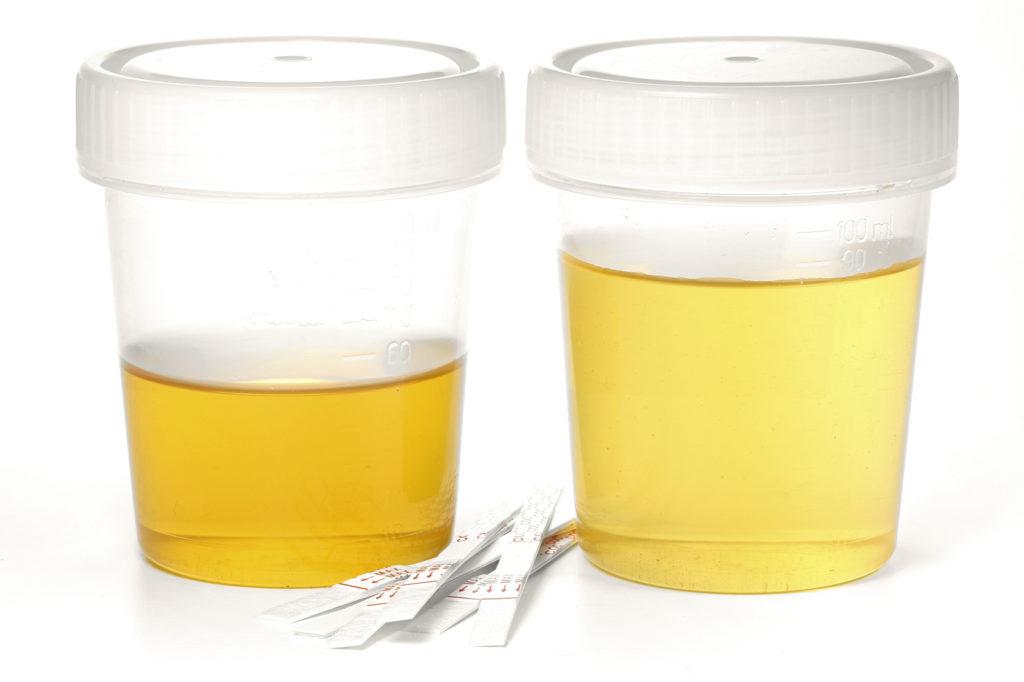 weisse im urin
