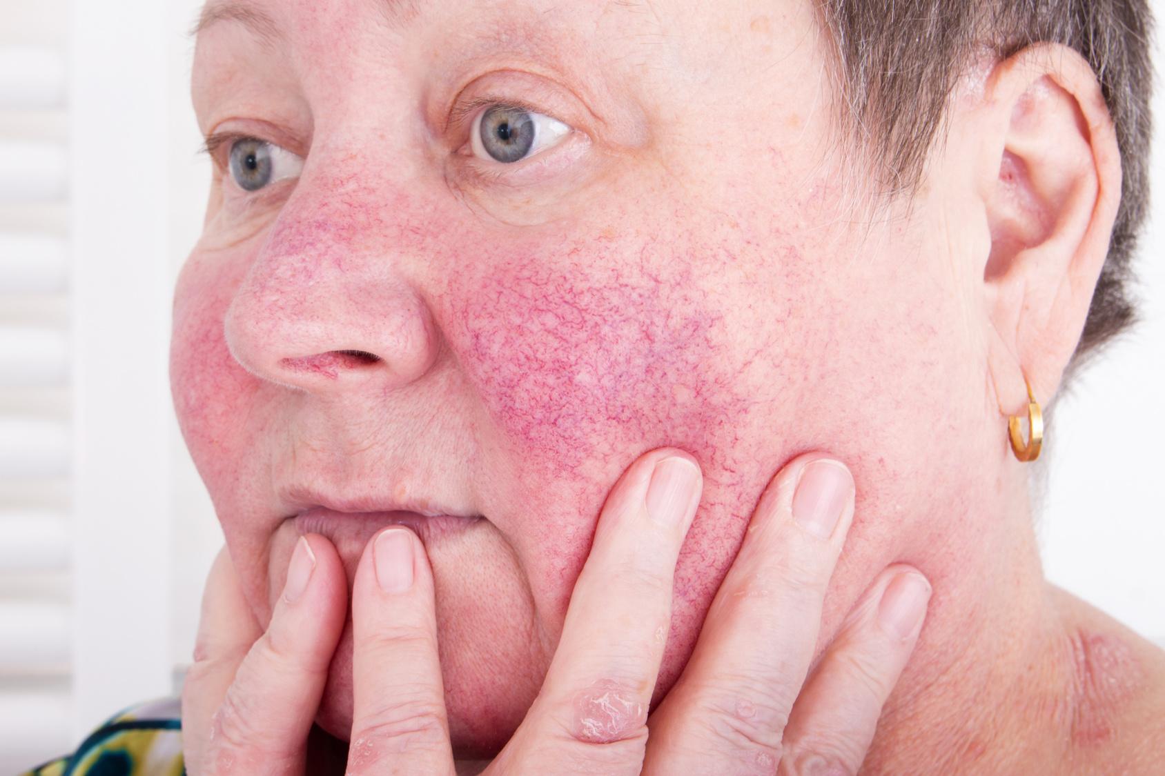 Nasenflügeln trockene haut Trockene Gesichtshaut:
