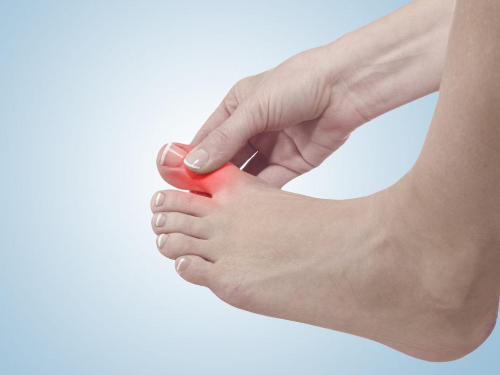 Zehenschmerzen – Ursachen, Behandlung und Vorbeugung