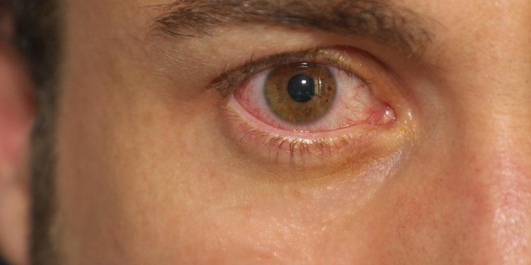 Herpes augenlid