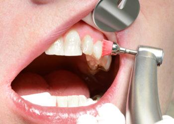 Bei einer professionellen Zahnreinigung werden die Beläge von den Zähnen beseitigt, was auch einem Zahnfleischrückgang und somit den offenen Zahnhälsen entgegenwirkt. (Bild: K.-U. Häßler/fotolia.com)