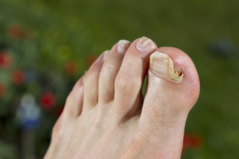 Teebaumöl bei nagelpilz