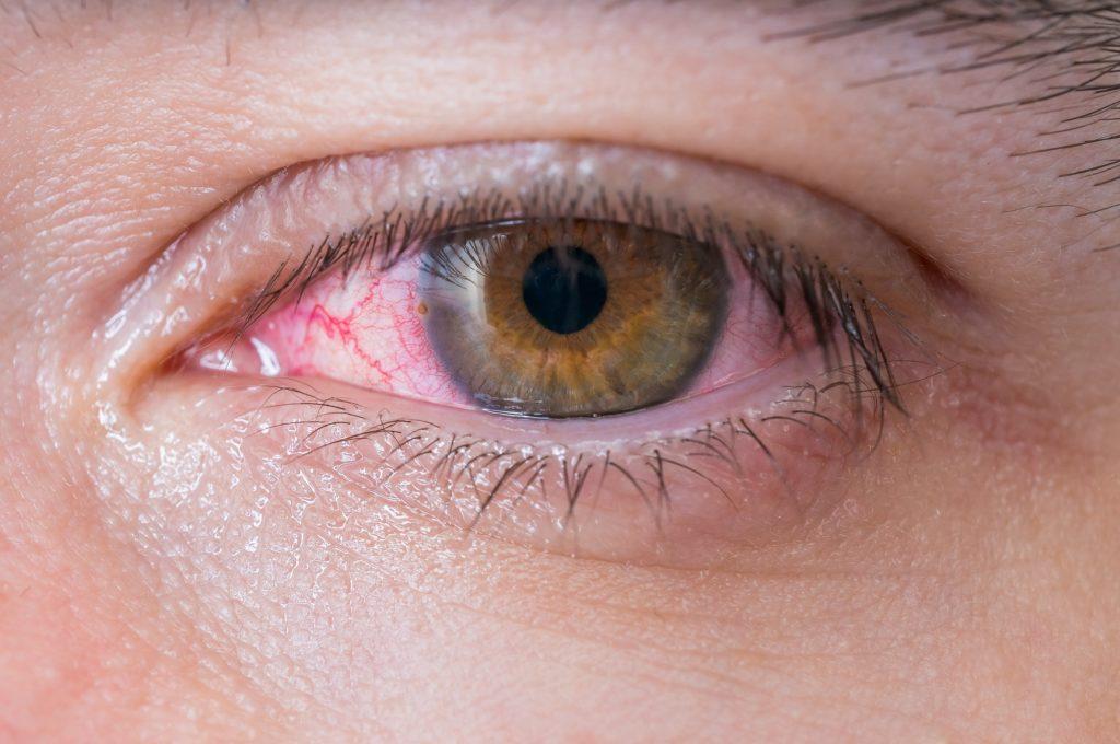 14 Würmer aus dem Auge einer Frau entfernt