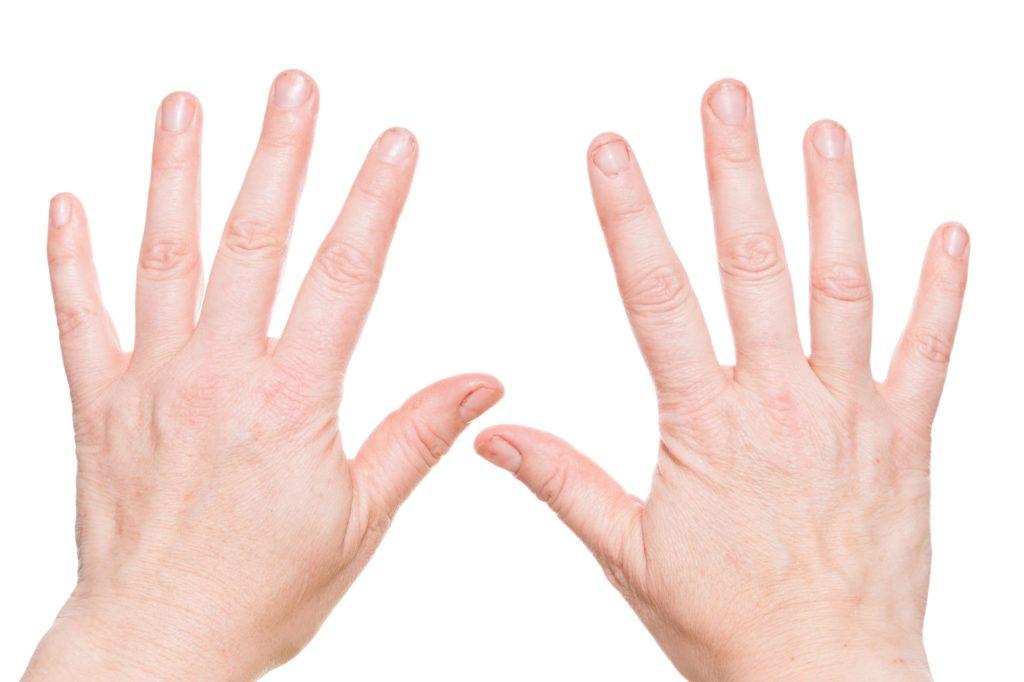 Einfache Diagnose Beschaffenheit Der Fingernagel Kann Auf