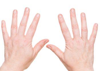 Dünne Fingernägel können unterschiedlichste Ursachen haben, lassen sich jedoch oft mit Hausmitteln erfolgreich beheben. (Bild: bmf-foto.de/fotolia.com)
