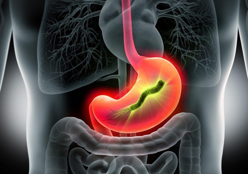 Magenentzündung - Symptome, Ursachen und Behandlung
