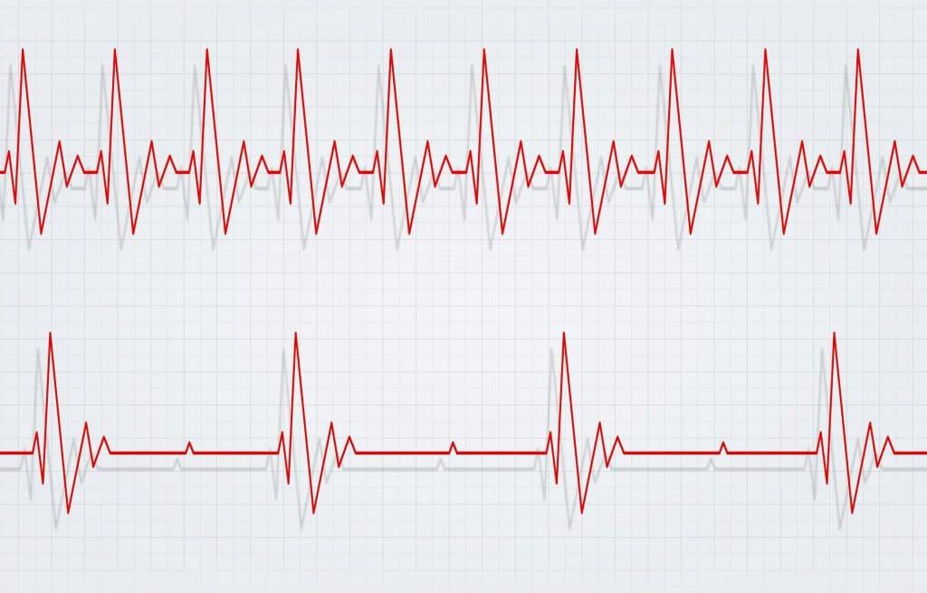 Herzkrankheiten- &#220...