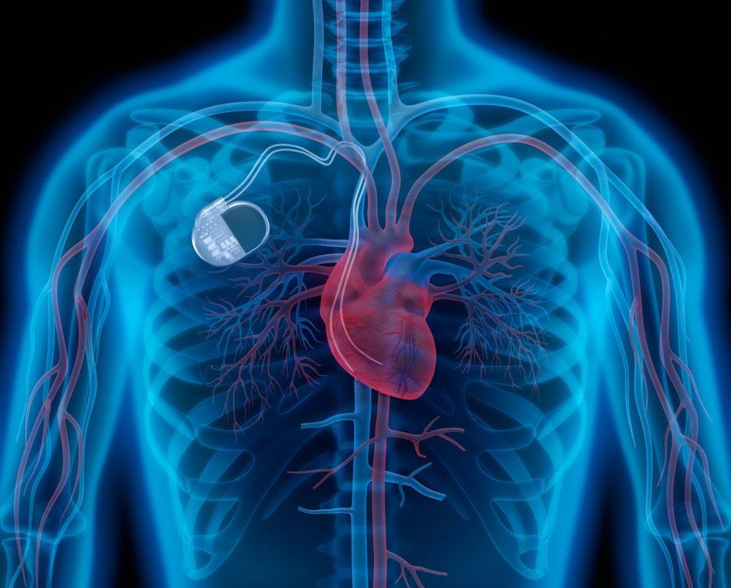 Herzinfarkt (Myokardinfarkt) - Anzeichen, Symptome, Ursachen, Therapien