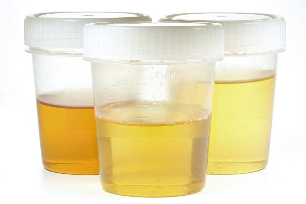 ursache dunkel gefärbter urin