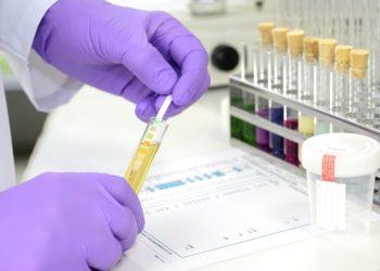 Im Labor werden die verschiedenen Bestandteile des Urins untersucht. (Bild: Gerhard Seybert/fotolia.com)