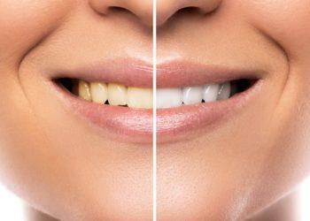 Der Zahnarzt hellt verfärbte Zähne mit hoch konzentriertem Bleichmittel auf. (Bild: blackday/fotolia.com)