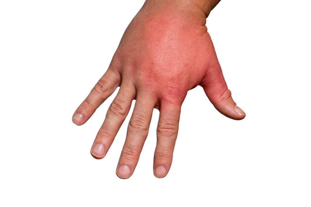 Wespenstich Allergie