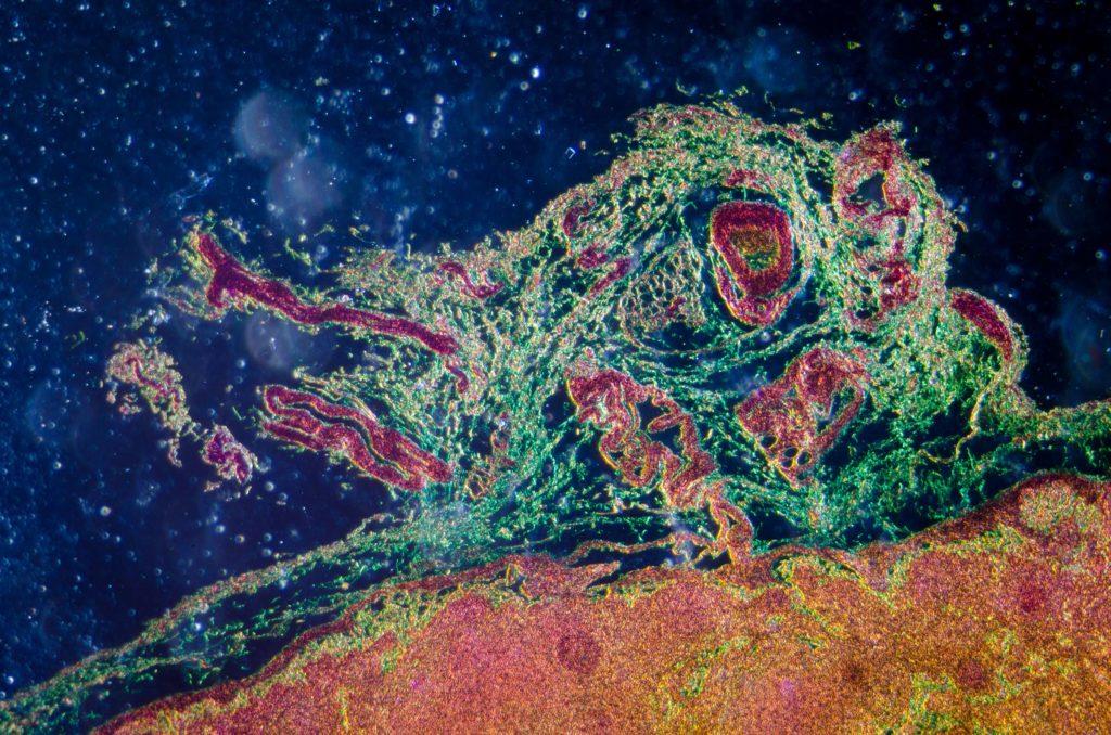 Entzündungen der Lymphgefäße & Lymphknoten