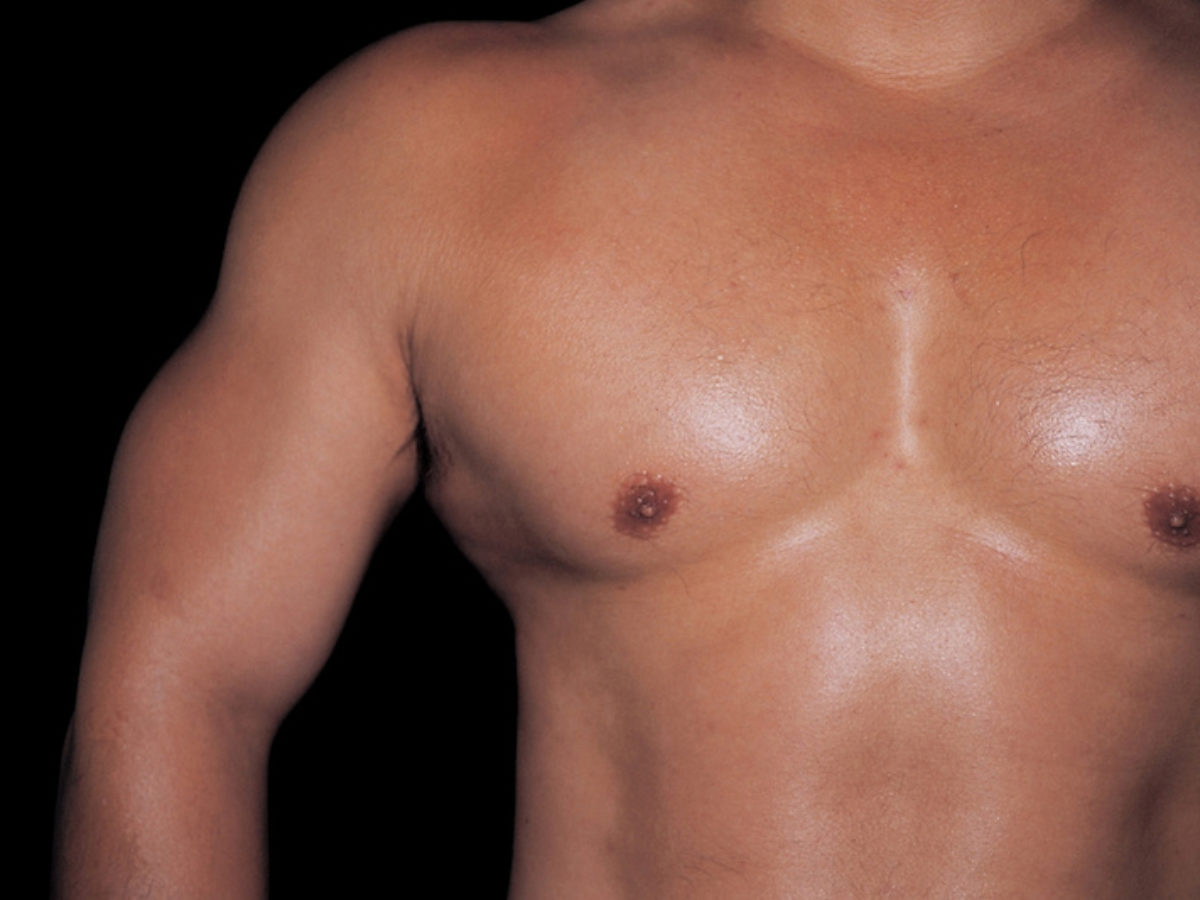 Brust östrogen mann Wenn Männer