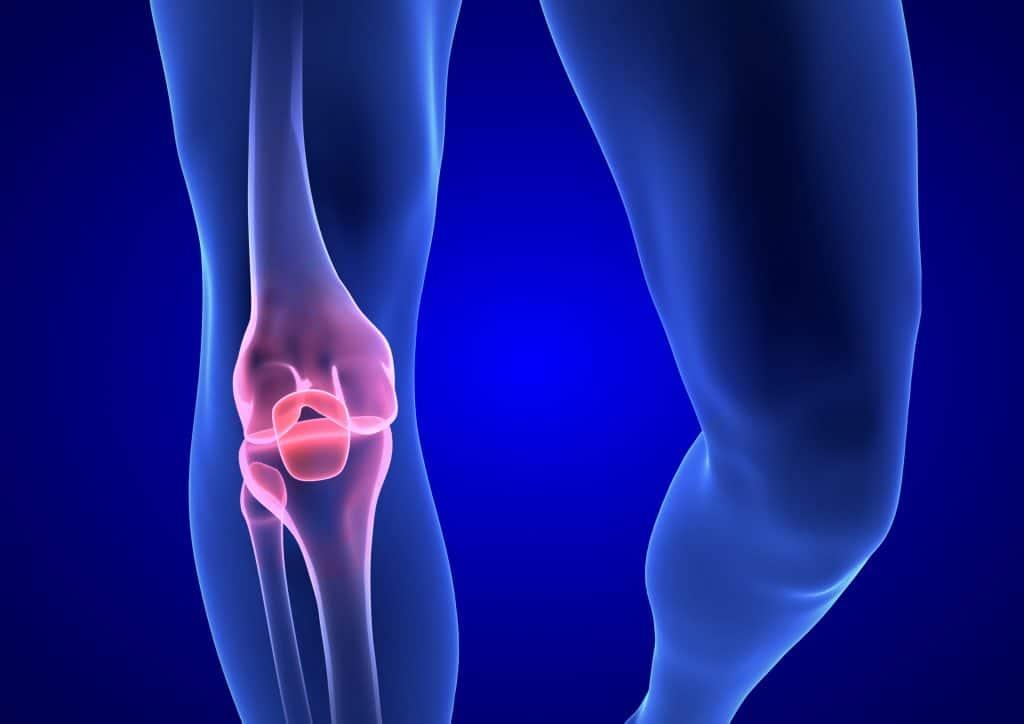 PferdeMedicSalbe – Kräftigende Hilfe bei Knieschmerzen