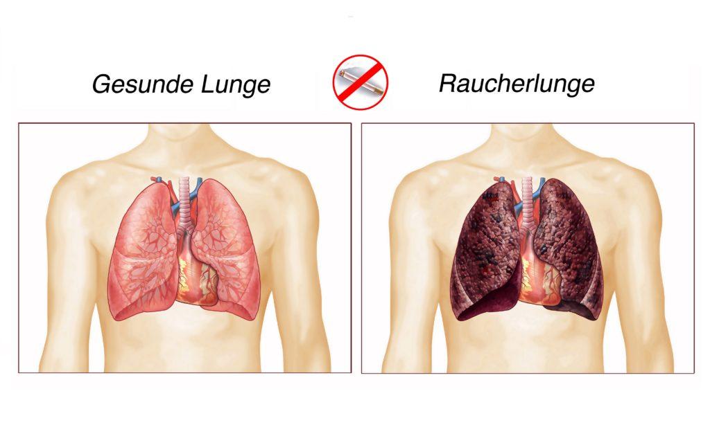 Raucherlunge (COPD) - Symptome, Ursachen, Therapie