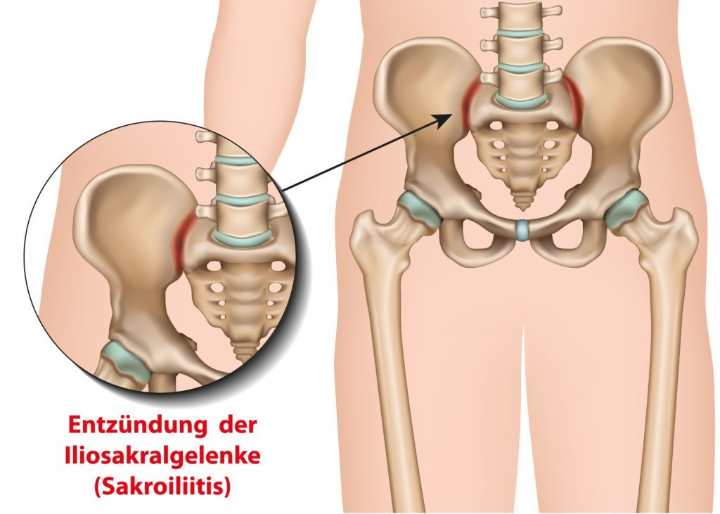 Schmerzen im Gesäß/Kreuz: Entzündlicher Kreuzschmerz – Bechterew & Co.