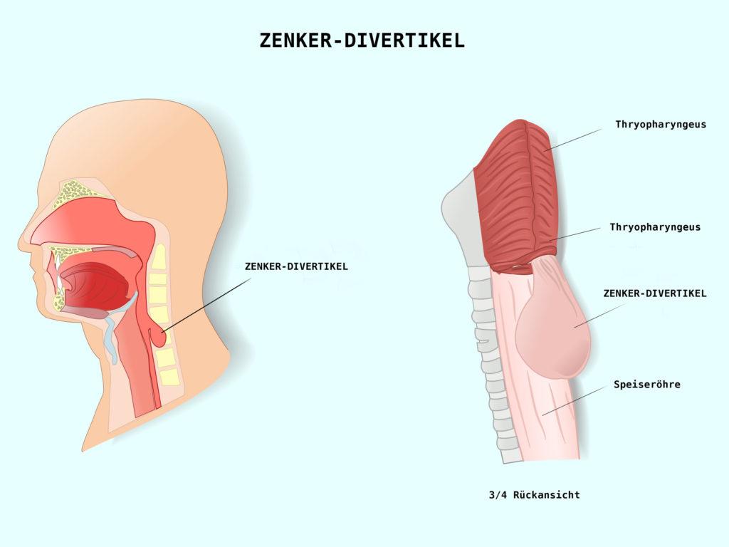 Divertikel der Speiseröhre (Ösophagusdivertikel)