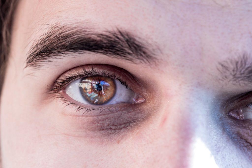 Dunkle Augenschatten