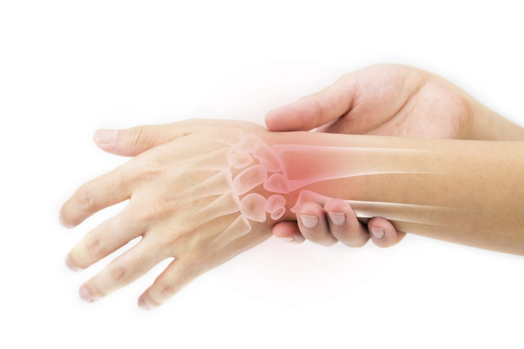 Handgelenkschmerzen Ursachen Und Therapie