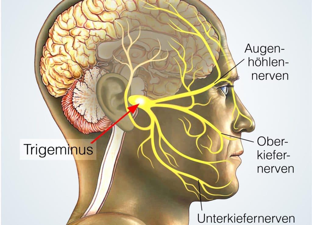 Sluder-Neuralgie