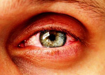 Ein Entzündung im Auge kann zu einem Augeninfarkt führen, gleichzeitig aber auch das Symptom eines solchen sein. (Bild:  Sergey/fotolia.com)