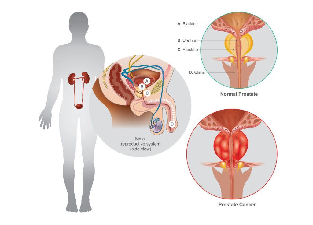 Blut im Urin (Hämaturie) – weitere Symptome, Ursachen, Therapien