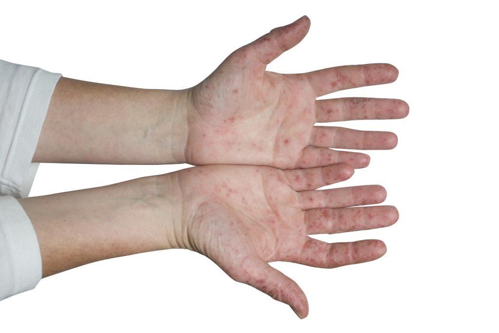 weit verbreitet und oftmals unbekannt anzeichen der hand fu mund krankheit erkennen. Black Bedroom Furniture Sets. Home Design Ideas