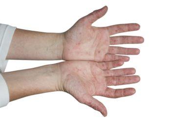 Es kommt zu Bläschen an Fuß, Hand und Mund. (Bild: groisboeck/fotolia.com)