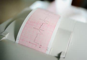 EKG am Handgelenk: Herzrhythmusstörungen mittels App feststellen